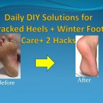 Daily DIY Solutions for Cracked Heels + Winter Foot Care+ 2 Hacks